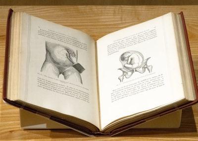 Traité du palper abdominal, au point de vue obstétrical by A. (Adolphe) Pinard