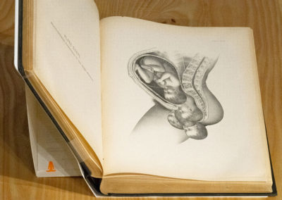 An illustrated encyclopaedia of the science and practice of obstetrics by F. H. Getchell, ed.