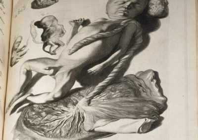 The anatomy of humane bodies, with figures drawn after the life by William Cowper