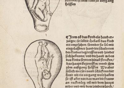 Der schwanngeren frawen und hebammen rosegarten by Eucharius Rösslin