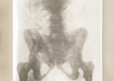 'Geburtshilflicher röntgen-atlas' by Christian Gerhard Leopold