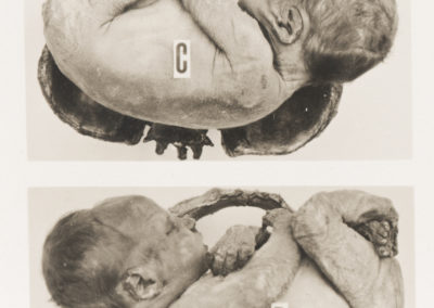 'Left and Right Acromio-Posterior Position of the Shoulder' from The Edinburgh Stereoscopic Atlas Of Obstetrics by G.F. Barbour Simpson, ed.