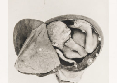 'Placenta Praevia' from The Edinburgh Stereoscopic Atlas Of Obstetrics by by G.F. Barbour Simpson, ed.