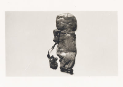 'Foetus Papyraceus' from The Edinburgh Stereoscopic Atlas Of Obstetrics by G.F. Barbour Simpson, ed.