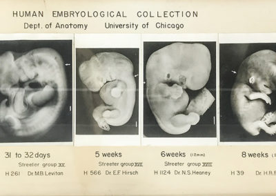 Medical School Anatomy Labs human embryological collection